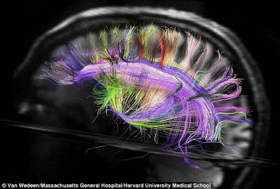 Brain - Van Wedeen Massachusetts General Hospital Harvard University Medical School